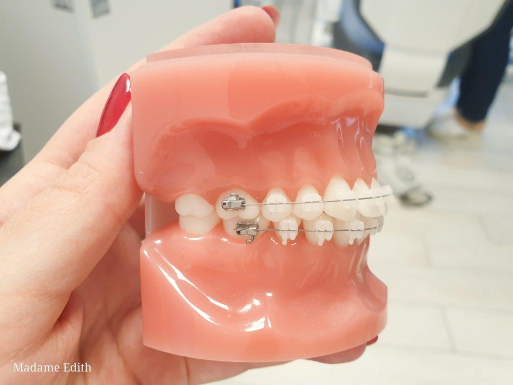 aparat ortodontyczny porcelanowy